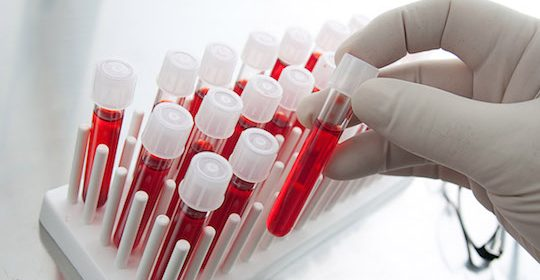 ¿En qué consiste el Protocolo de Trasplante Renal?