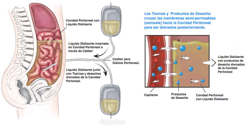Dialisis_Peritoneal004